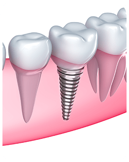 Dental Implants   Canterra Dental Centre   Downtown Calgary   General and Family Dentist