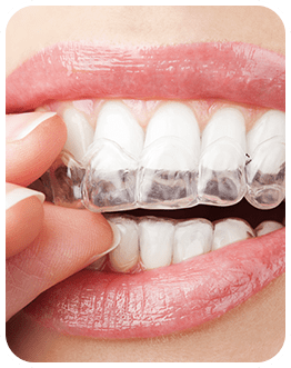 Invisalign Clear Aligners   Canterra Dental Centre   Downtown Calgary   General and Family Dentist