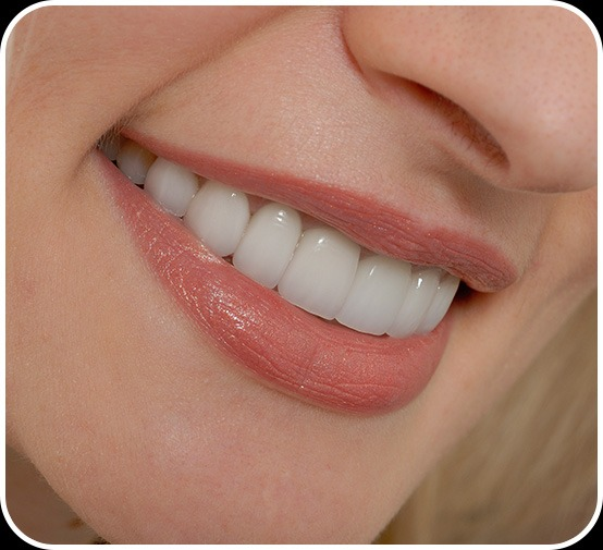 Dental Veneers | Canterra Dental Centre | Downtown Calgary | General and Family Dentist