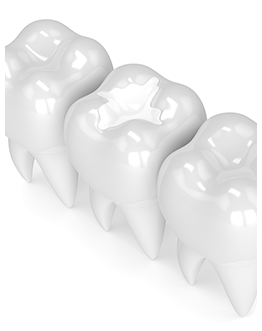 Restorative Dentistry   Canterra Dental Centre   Downtown Calgary   General and Family Dentist