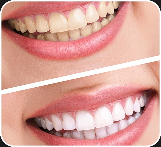 Teeth Whitening   Canterra Dental Centre   Downtown Calgary   General and Family Dentist