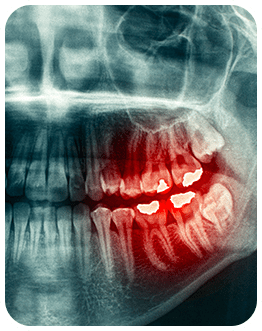 Wisdom Teeth Extraction   Canterra Dental Centre   Downtown Calgary   General and Family Dentist