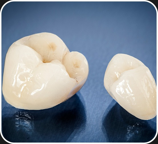 Dental Crowns   Canterra Dental Centre   Downtown Calgary   General and Family Dentist