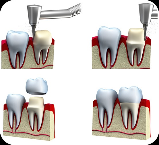 Dental Crowns Process   Canterra Dental Centre   Downtown Calgary   General and Family Dentist