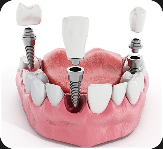 Dental Implants | Canterra Dental Centre | Downtown Calgary | General and Family Dentist