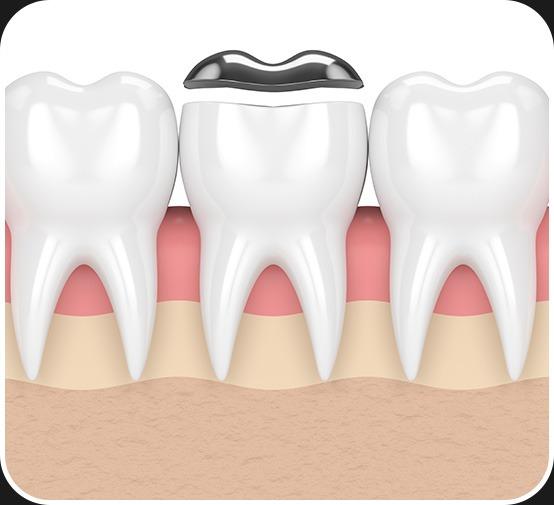 Restorative Dentistry | Dental Onlay | Canterra Dental Centre | Downtown Calgary | General and Family Dentist
