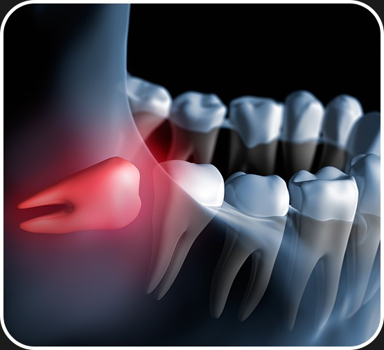 Wisdom Teeth Removal   Canterra Dental Centre   Downtown Calgary   General and Family Dentist
